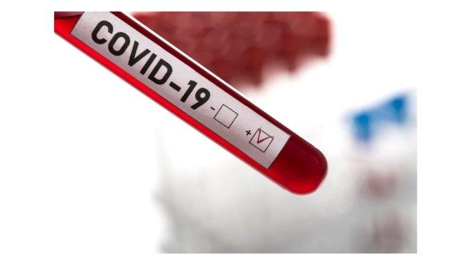 COVID-19 contaminations