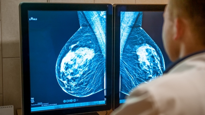 Black Women with early breast cancer had higher rates of obesity