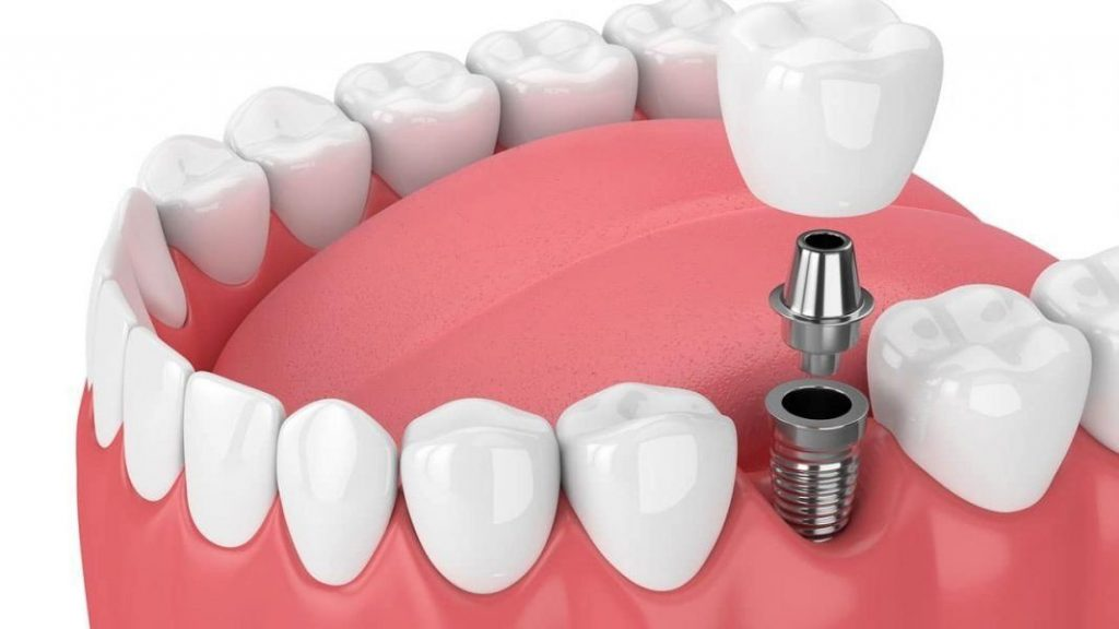 Dental PR 2nd image 1067x600 1