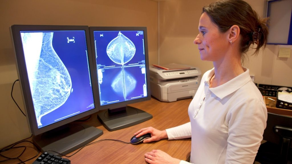Predicting Cancer Risk From New Mammograms Could Revolutionise Screening