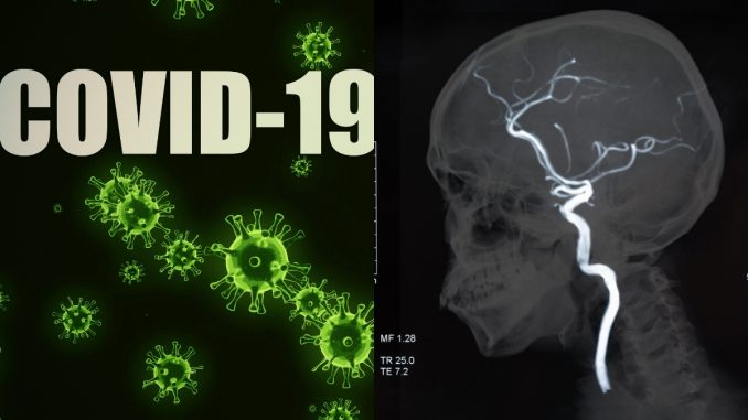 Study: COVID-19 virus can cause blood-brain barrier