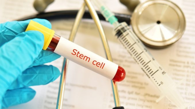 Stem cell therapy for vascular disease can be predicted through real-time observation