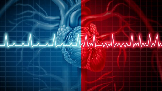Atrial Fibrillation : One small alcoholic drink a day is linked to an increased risk of atrial fibrillation