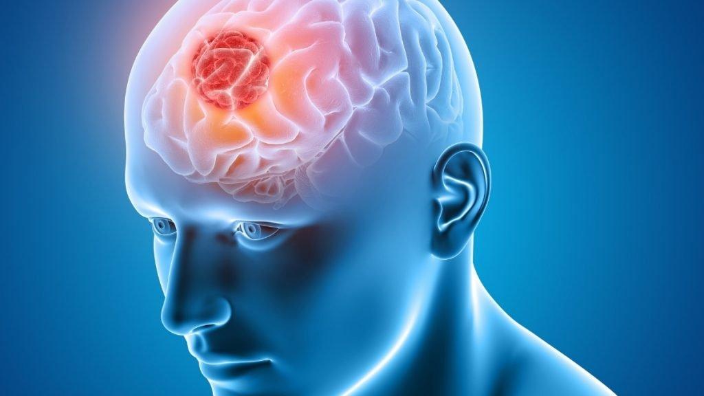 Brain Tumour : New methodology with improved treatment of brain tumours
