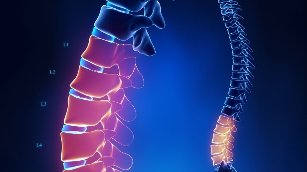 Bone density loss from after stopping Anastrozole treatment