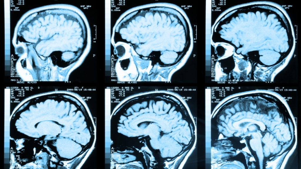 Secrets of traumatic stress hidden in the brain are exposed