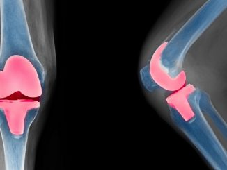 Knee Replacement: Alternate type of surgery may prevent total knee replacement