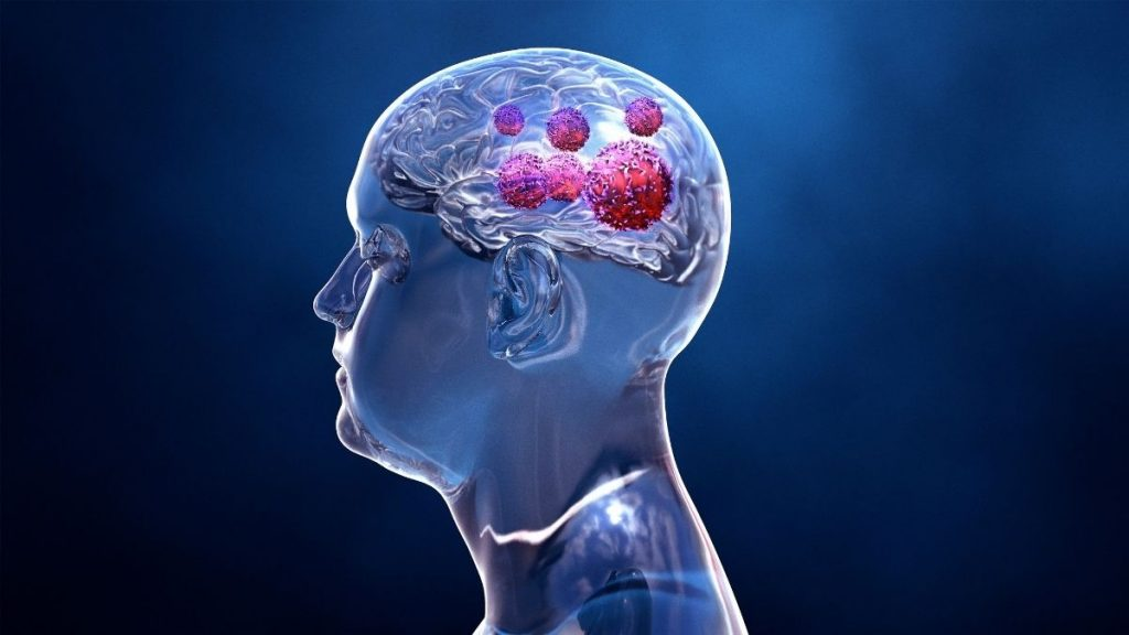 New Potential Approach Against Fatal Childhood Brain Cancer