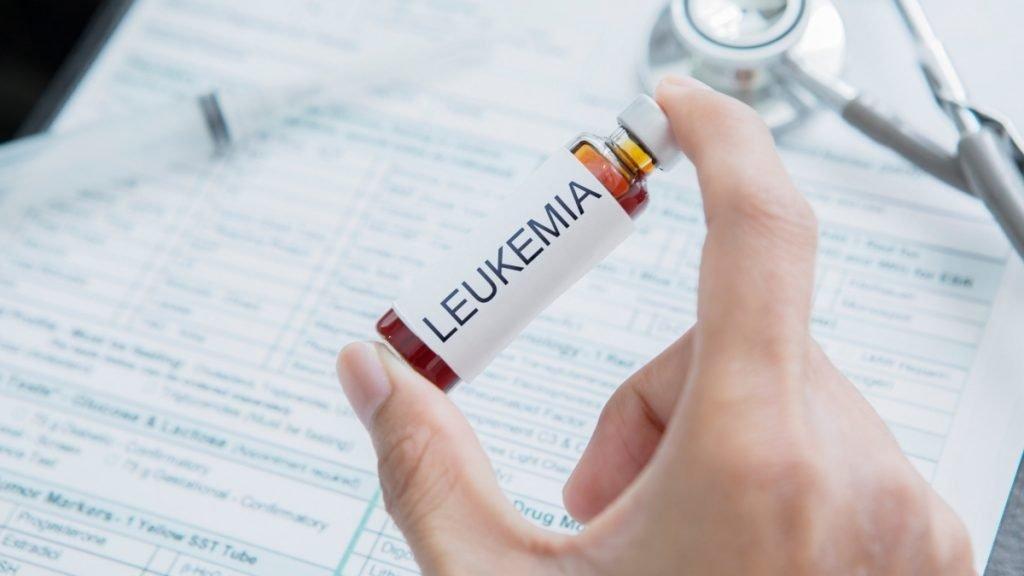 Acute Myeloid Leukemia: Researchers takes early step towards leukemia drug therapy