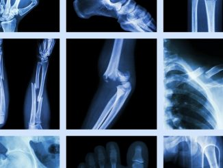 Factors linked with elevated risk of bone fractures