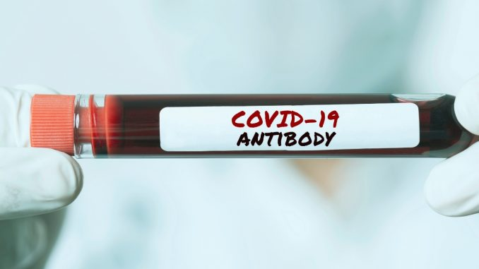 COVID antibodies are transferred from pregnant women to their babies - Vigor Column