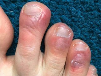Covid Toes1 mG6vOH COVID